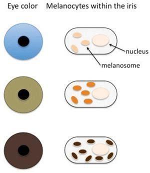 iris color change heterochromia