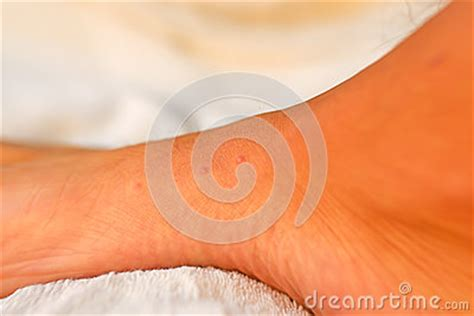 bed bug bites on feet bed bug bites on a foot royalty free stock image image 27214516