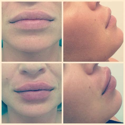 Augmentation Fill by 17 Best Ideas About Lip Augmentation On Lip
