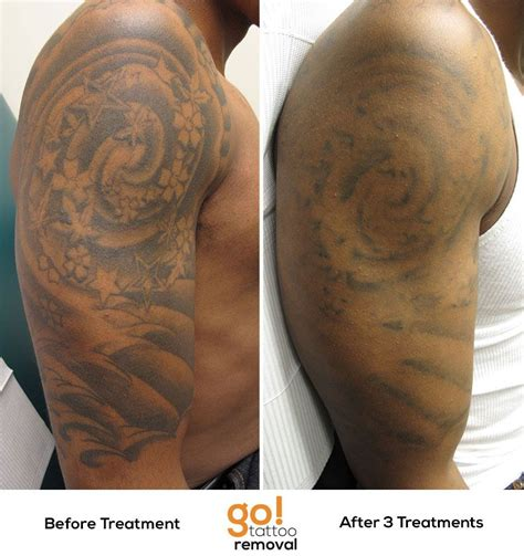 tattoo sleeve removal after 3 laser removal treatments there is