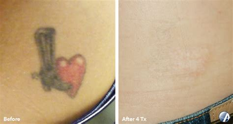 tattoo removal rochester ny rochester removal rochester removal