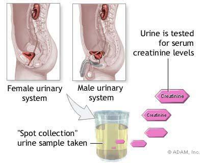 creatine in blood the new york times gt health gt image gt creatinine urine test