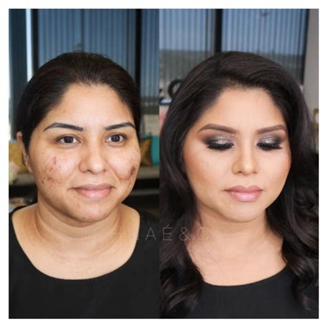 before and after makeovers for women in their 60s 12 acne before and after makeovers 2 woman s world
