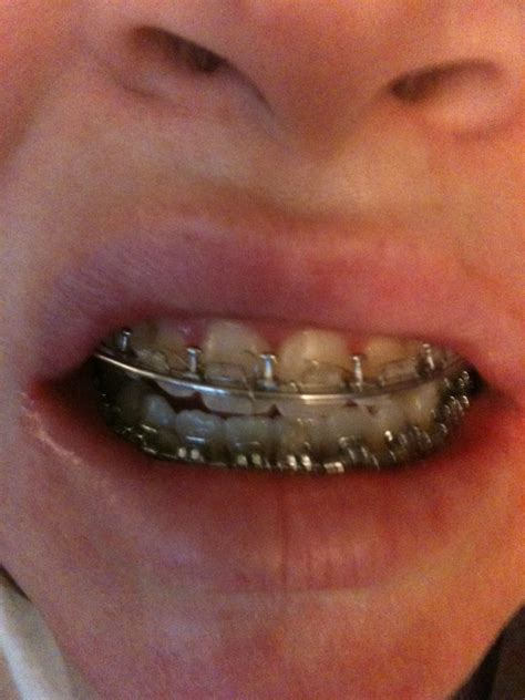 smile braces and jaw surgery my journey quot you