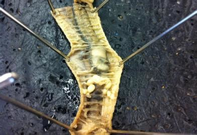 earthworm dissection aortic arches bio 1121 lab test 2 psychology 3070 with langston at middle tennessee state studyblue