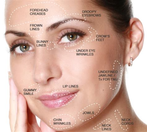 botox injections botox injections lakeland mulberry bartow winter haven