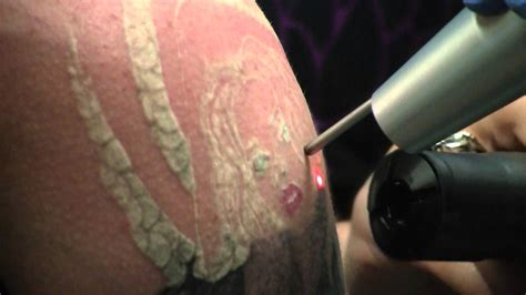 tattoo removal stages the tattoo removal process youtube