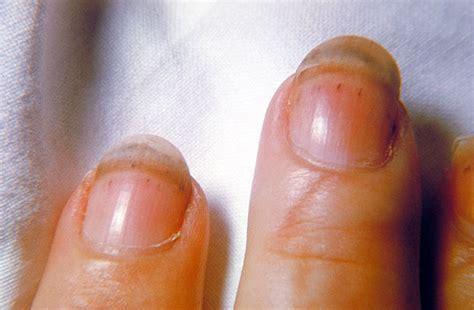 Nail Bed Pain Trichinosis Medical Substance