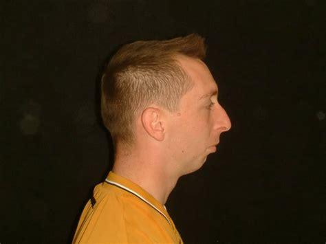 weak chin men strong plastic surgery transformation on tom cruise itt