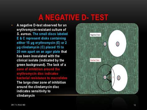 test d clindamycin uses and concerns
