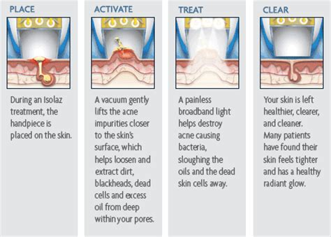 broadband light treatment cost isolaz acne therapy seattle wa