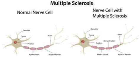 Sclerosis Pictures Diagrams nerve affected by sclerosis royalty free stock