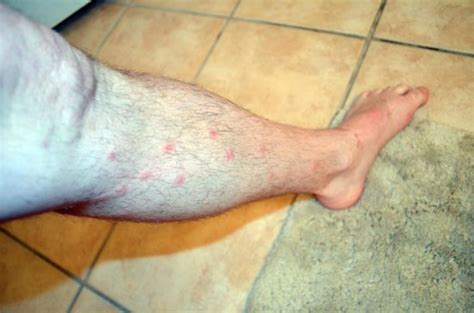 Bed Bug Bites On Legs by Bed Bug Bites On Leg Picture Taken Evening The Same