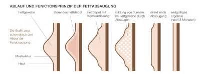 fettabsaugen bauch vorher nachher bilder fettabsaugung am bauch oberschenkeln reiterhosen