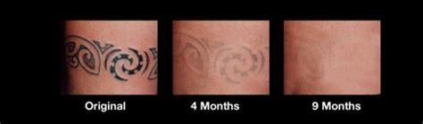tattoo removal cream jhb 타투 제거 크림 네이버 블로그