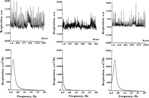 breathing pattern in heart failure oscillatory breathing patterns during wakefulness in