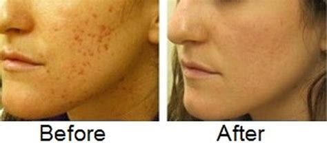 remove acne scars how to fade acne scars fast naturally diminish acne