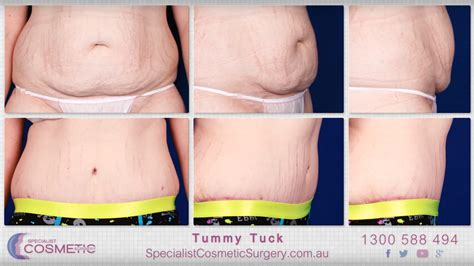 when can you have a tummy tuck after c section tummy tucks and body lifts before and after page