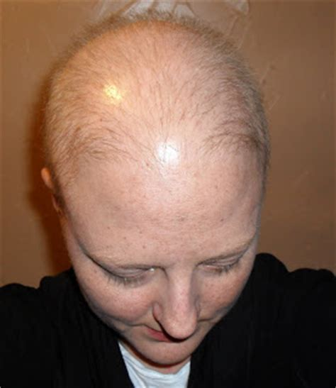 chemo and pubic hair so this is what it s all about can i have some hair please