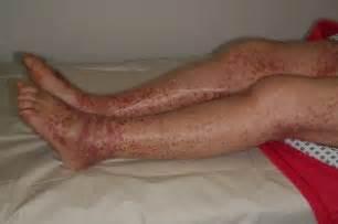 juckende beine nach duschen rote flecken an den beinen nach dem duschen