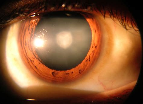 Cortical Blindness Treatment File Cataract In Human Eye Png Wikipedia