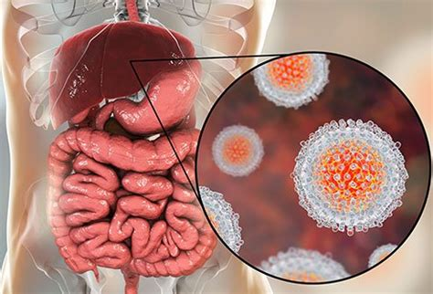 hepatitis a: causes, symptoms, treatment, and vaccines