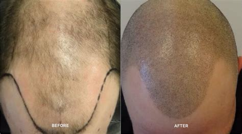 scalp micropigmentation to make hair ticker pictures scalp micropigmentation to make hair ticker pictures