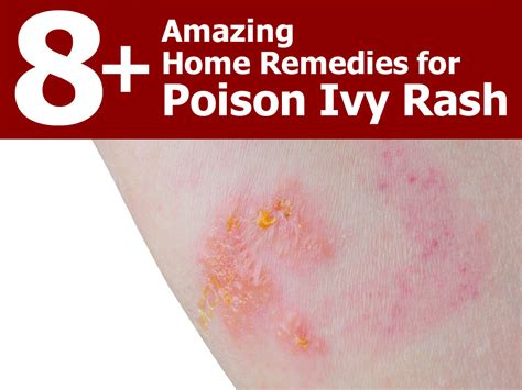 8 amazing home remedies for poison rash