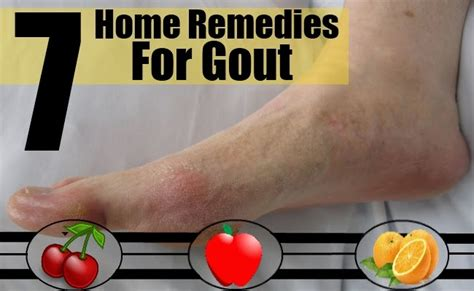 gout home treatment gout treatment hairstyles