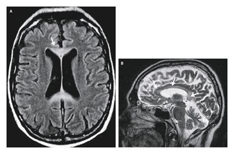 Marchiafava Bignami Disease Literature Review And Report marchiafava bignami disease