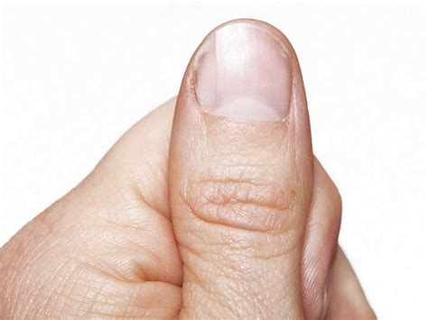 several toenails look skin color under them nail pitting causes treatment and more