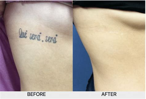 spectra laser tattoo removal 100 spectra laser removal picoway laser
