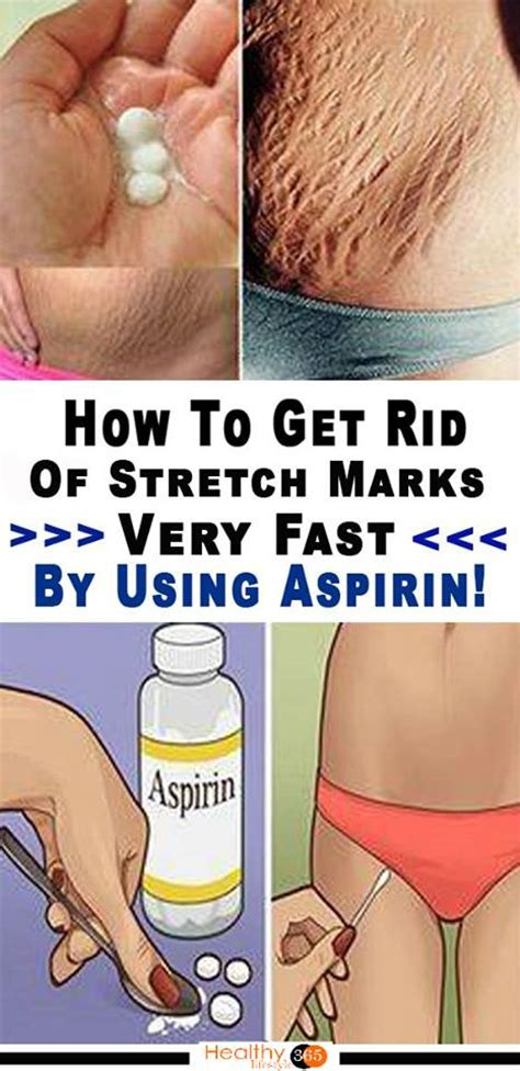 fast marks how to get rid of stretch marks very fast by using aspirin
