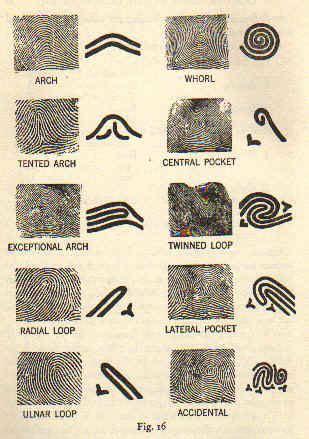 print pattern types scientific dermatoglyphics