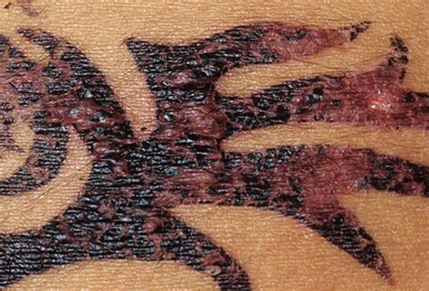 henna tattoo allergy medicine picture of skin diseases and problems henna reactions