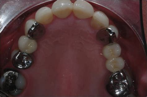 bridges christopher sale dentistry