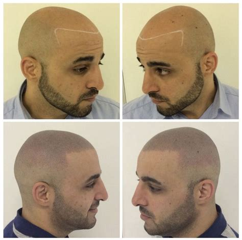 hair tattoo bald 18 best images about before and after scalp micro