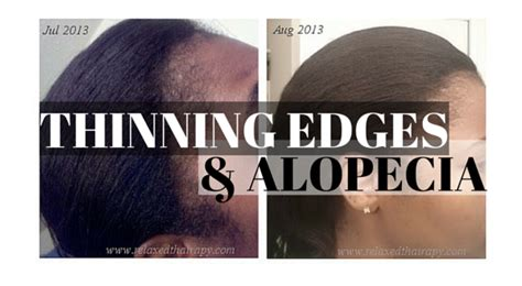 best weave styles for thinning edges how to regrow thinning edges