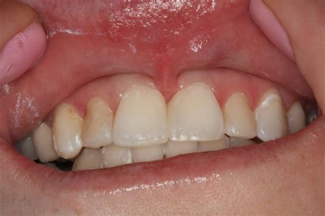diode laser frenectomy study using a dental diode laser for a cleaner easier frenectomy dentalcompare