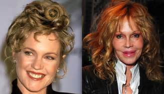Many people insist melanie griffith has had numerous plastic surgery