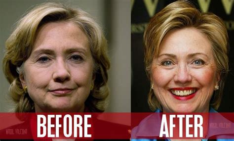 did hillary clinton have plastic surgery 2015 hillary clinton plastic surgery before and after photos