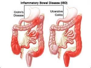 blood in stool pooping blood 10 alarming causes danger signs thrombocytes