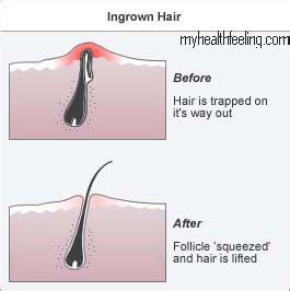 ingrown pubic hair treatment symptoms bumps boils abscess