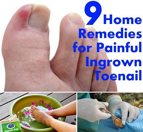 5 remedies for ingrown toenail ingrown toenail 9 home remedies for painful ingrown toenail diy home things