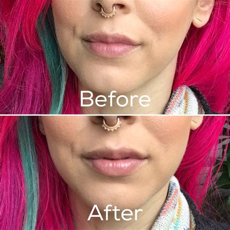 Dr Brandt 3d Lip Plumpfix Sachet juvalips lip plumper does it work vegan