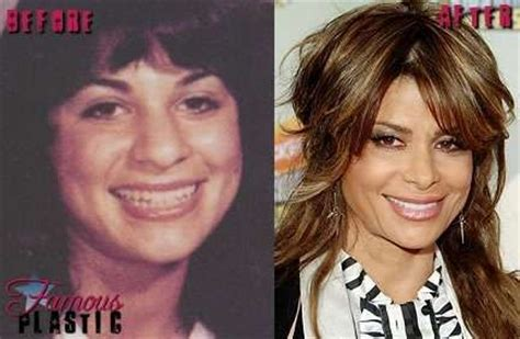 Paula Abdul Breaks Nose by Paula Abdul Before And After Plastic Surgery Plastic