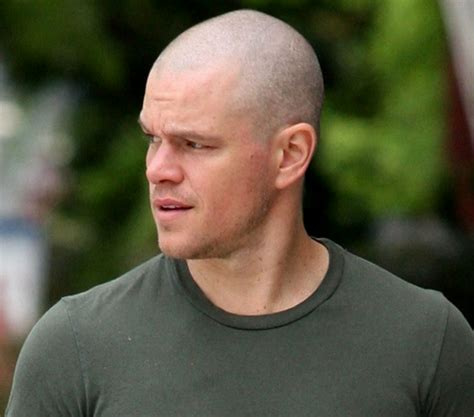 what extension buzz for balding fa fashion