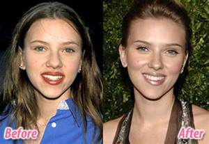 Before Surgery Plastic Surgery Before After 56 Pics