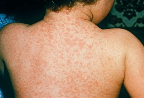 measles rash pictures symptoms causes treatment home