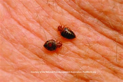 can bed bugs lay eggs in your skin what are the bugs that lay eggs under skin blurtit